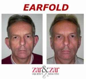 earlfold orejas de soplillo