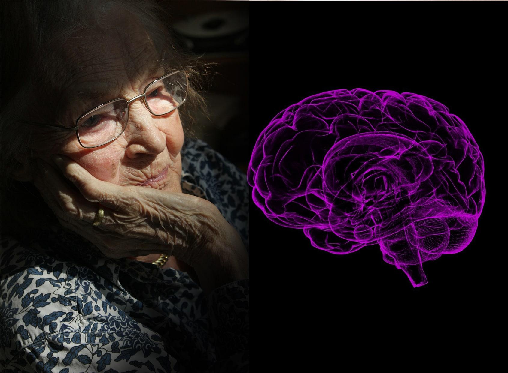 Alzheimer y las patologias bucodentales