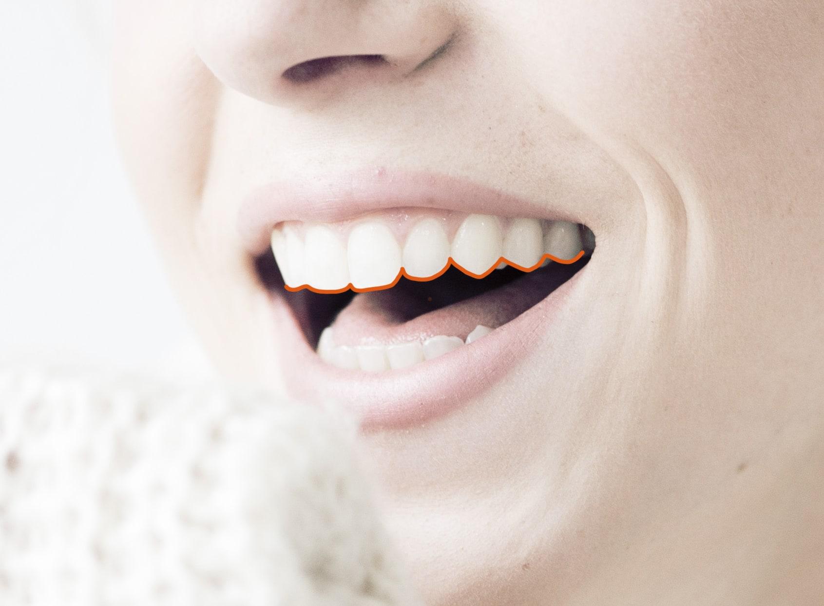 Recontorneado dental